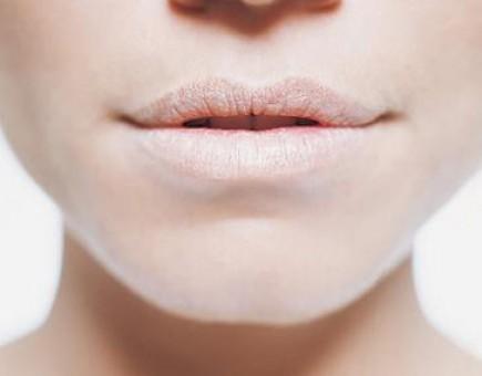 Acabe com os lábios gretados