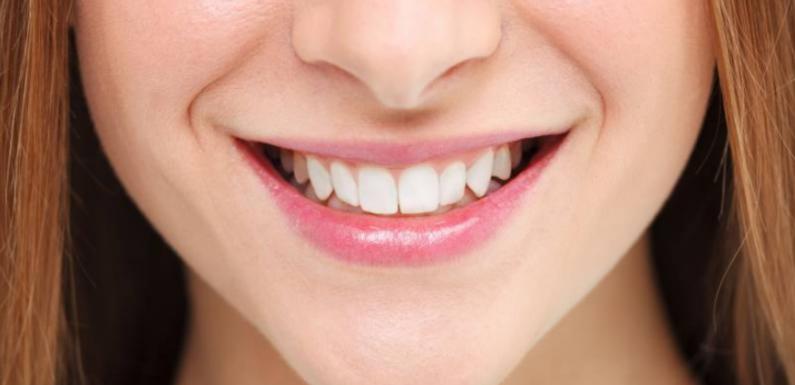 Como fazer um branqueamento dentário